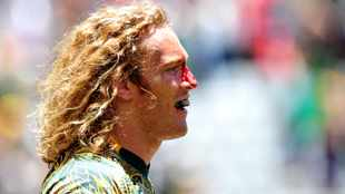 Injuries continue to put a damper on Blitzboks preparation for World Series
