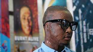 'Burnt alive' at 15, Qaphela Gobodo's book inspiring those with physical scars