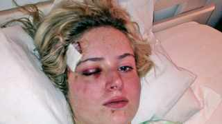 12 july 2015 Sanet de Lange was attacked in a taxi and had to flee for her life.