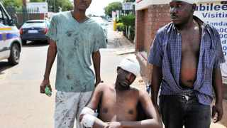 29/01/2014. Tshepo, Johannes Mpinga and Erens Kodisang are admited at Jubilee Hospital in Hammanskraal after they were attacked by the angry mob. Picture: Oupa Mokoena