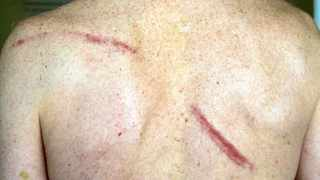 7 september 2015 William Ferris shows a back injury incurred when a car stopped and sjambokked Wiliam  & other cyclists on Black Hill.