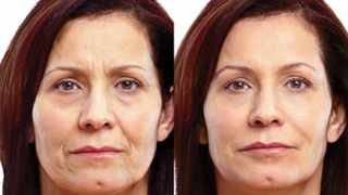 Before and After photographs issued by Allergan show how dermal fillers can plump up the skin and smooth deep lines around the eyes and mouth.
