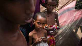 In this photo released by the UNHCR severely malnourished children look on at the Al Adala internally displaced peoples settlement in Mogadishu, Somalia.