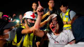 A medic treats a pro-Beijing man after he was hit by protesters for waving a Chinese national flag during a rally at Tamar Park in Hong Kong. Picture: Vincent Yu/AP