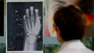 A doctor looks at an x-ray of a woman's broken wrist displayed during the exhibition 'Invisibility is not a superpower' which includes x-ray's of anonymous women who arrived at the hospital's emergency room claiming to be victims of violence, at the San Carlo Hospital, in Milan, Italy.  Picture: Luca Bruno/AP
