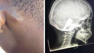Doctors in Namibia removed a 6cm long knife blade lodged in Stanza Narib's head after the 21-year-old was stabbed with a knife two months ago. Picture: Supplied