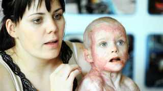 031-Pippie Kruger 3yr old burn victim who had surgery in June is now out hospital with Mother Anice Kgruger. AuckalndPark Johannesburg. 13.09.2012 Picture:Dumisani Dube