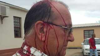 "Executive Mayor for the Baviaans Municipality Mayor Ewald Loock was struck over his head with a 'knobkierie"" by angry protesters. Picture: Supplied"