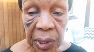 Singer and actress Abigail Kubeka after a road rage incident involving a taxi driver in Soweto two weeks ago.