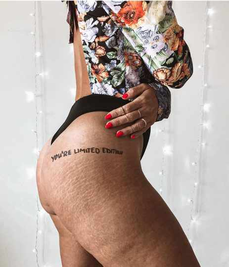 Everything you ever wanted to know about stretch marks